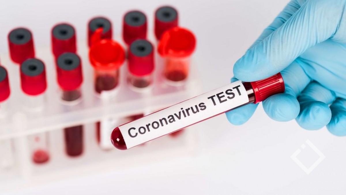 აჭარაში კორონავირუსის333 ახალი შემთხვევა გამოვლინდა, გარდაიცვალა 7 პაციენტი